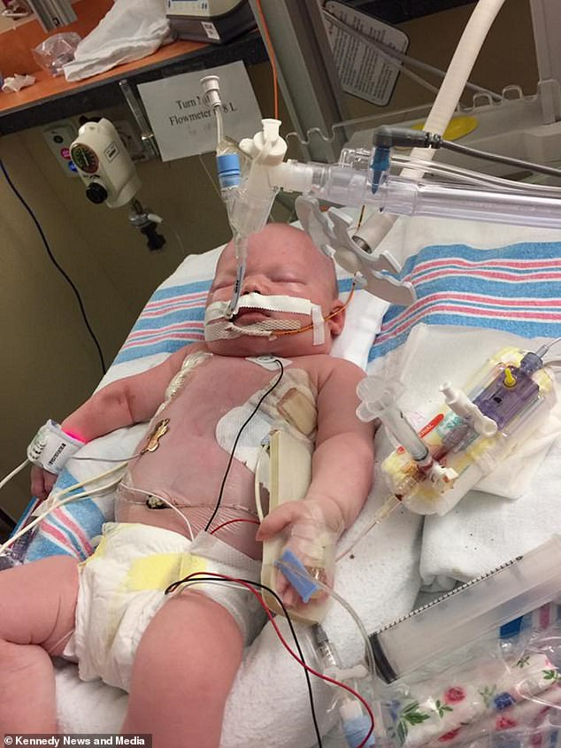 Baby Died After Contracting Herpes Virus From Kiss